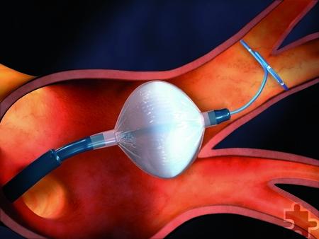 Die Kryoballon-Behandlung ist ein minimalinvasives Verfahren, bei dem die Pulmonalvene, eine Quelle für das Entstehen von Vorhofflimmern, mit einem Kältemittel statt mit Hitze vom Herzen isoliert wird. Foto: Medtronic/pp/Agentur ProfiPress
